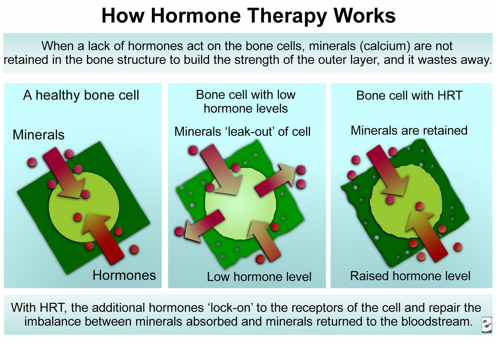 hormone replacement therapy(HRT)