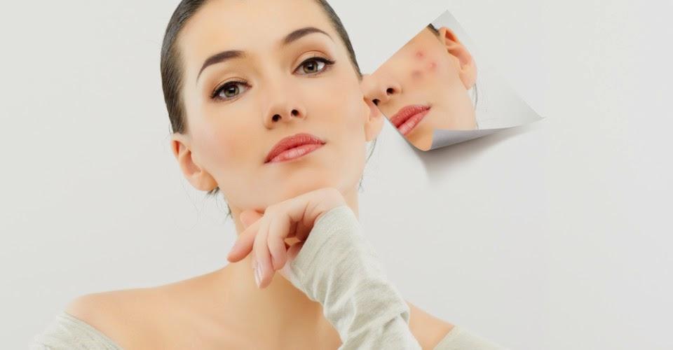 Cara Menghilangkan Bekas Jerawat Berlubang di Wajah Anda Secara Praktis