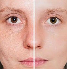 Alimentos para uma pele lisa, hidratada e homogénea