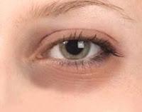 menghilangkan lingkar di mata