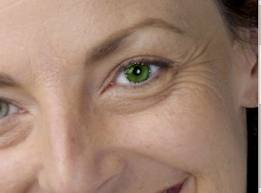 Argireline® - Una alternativa al Botox®