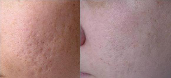 Is TCA Cross, Not TCA Peel, Truly an Effective Method for ...