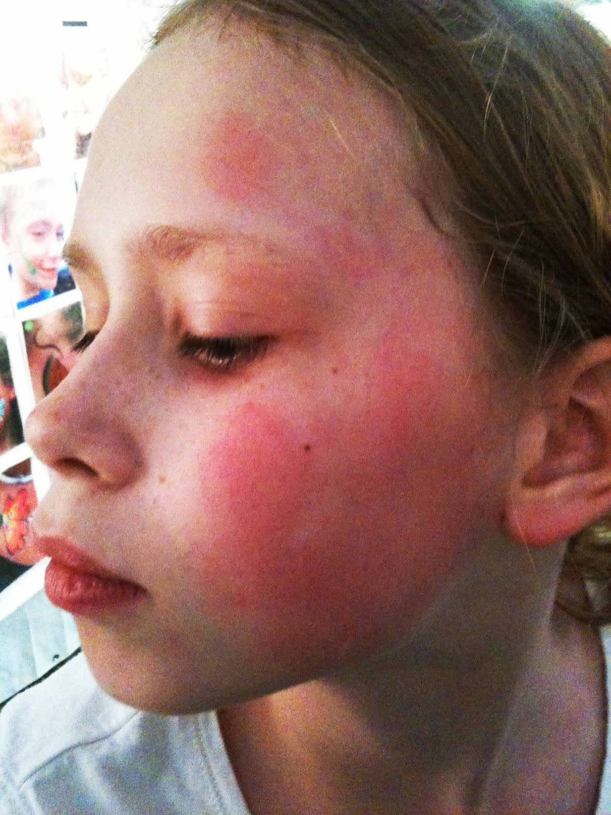 allergic reaction rashes from latex paint