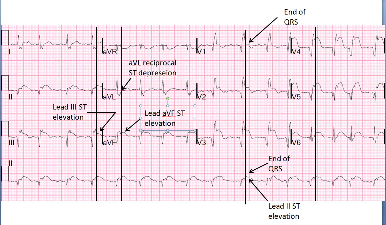 Dr. Smith's ECG Blog: Large Transmural STEMI with Myocardial