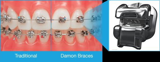 Dsb dental clinic smile youve got options traditional braces vs damon braces solutioingenieria Choice Image