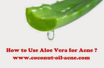 How-to-Use-Aloe-Vera-for-Acne