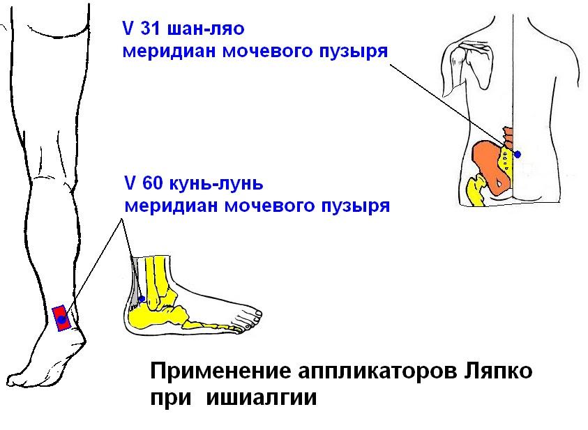 Механорецептор