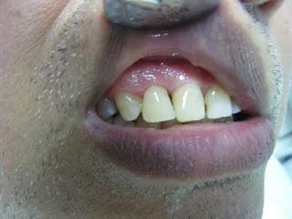 ayrık diş kapatılması