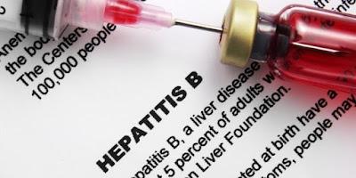 7 Fakta Penting Penyakit Hepatitis B yang Harus Diketahui