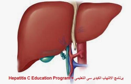 Hepatitis C Education Program ,برنامج الالتهاب الكبدى سى التعليمى,علاج فيروس سى , مرضى الكبد, الخوجة,hcv