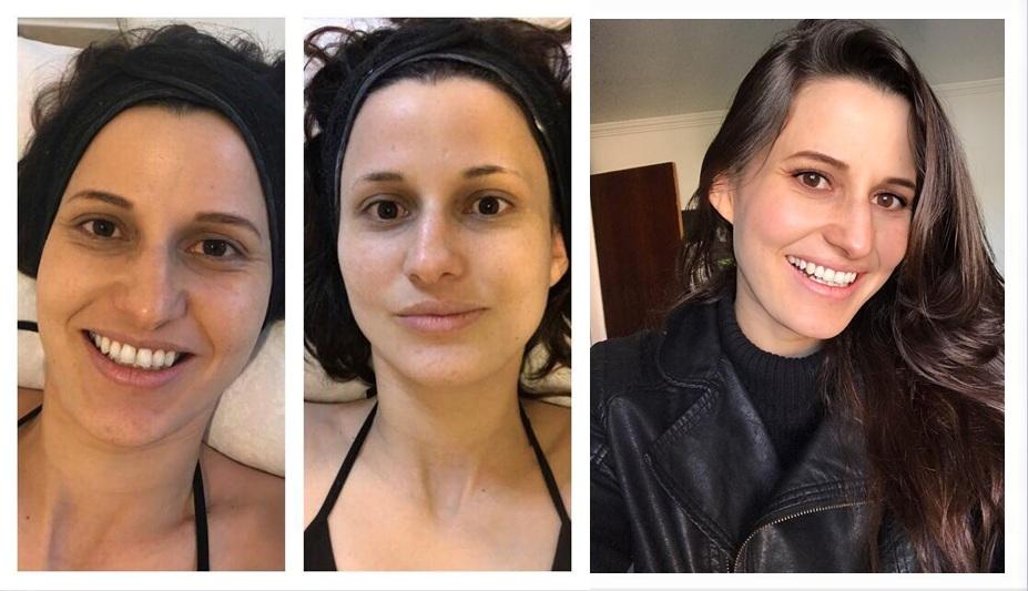 Modelo faz tratamento de beleza e dá dicas de como economizar na hora de pagar