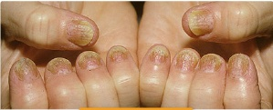 Brittle Nails Are Common In People With Kidney Disease And Also Iron Deficiency Called Anemia An Underlying Thyroid Could He A Cause Of