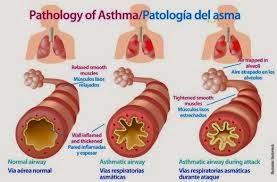 Gejala dan Penyebab Penyakit Asma (Bengek)