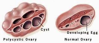 Clomid For Ovarian Cyst
