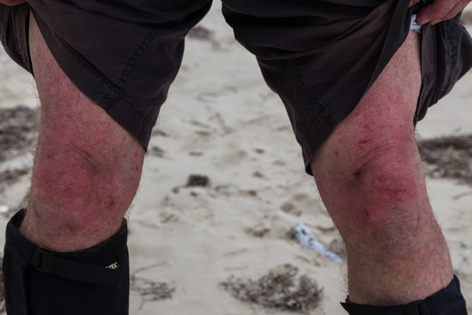 cut knees from scrub hiking