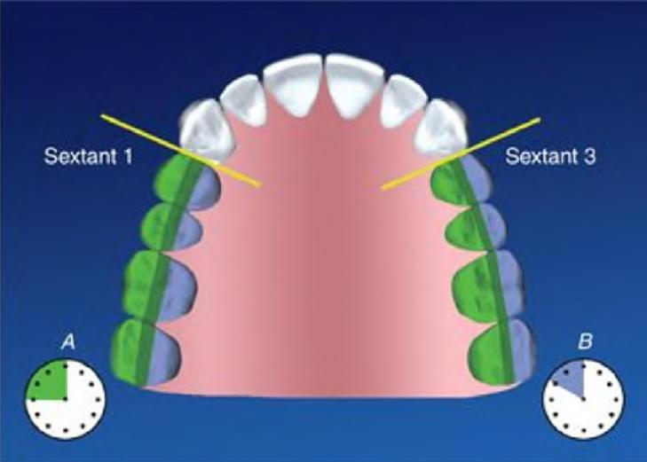 Dentistry Lectures For Mfds  Mjdf  Nbde  Ore  Principles Of
