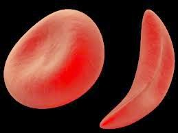 Sickle_Cell