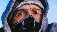 Τι πρέπει να κάνετε σε περίπτωση υποθερμίας από έκθεση στο κρύο. Άμεση φροντίδα για βλάβες από το κρύο