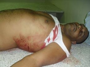 Tres meses de prisión preventiva a acusado matar a perredeísta en Moca