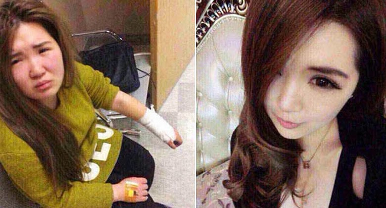 Tidak Sama Dengan Foto di Media Sosial, Wanita ini Dipukuli Pacarnya