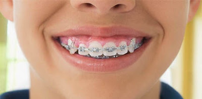 التغذية وجهاز تقويم الأسنان.. dent_0110.jpg