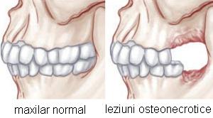 Osteonecroza: recunoastere, depistare, tratament
