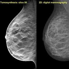 tomosynthesis breast Tomosynthesis is a new method of breast screening that appears to be more reliable than a regular mammogram it provides a 3-d image of the breasts.