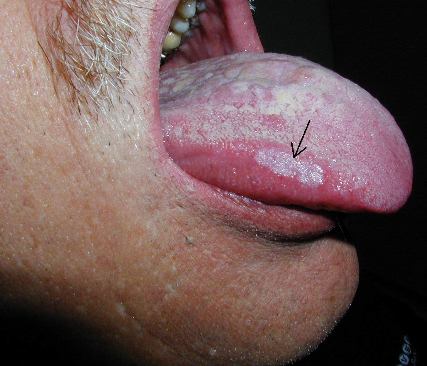 White Spots on Mouth Mucosa