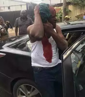 Lagos APC primary election marred by violence(see the photo)