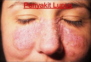 Cara Menghilangkan Penyakit Lupus