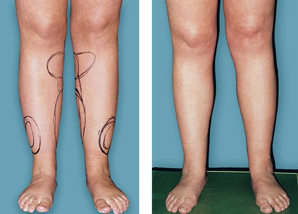 Laser Liposcustion for calves andles and  legs