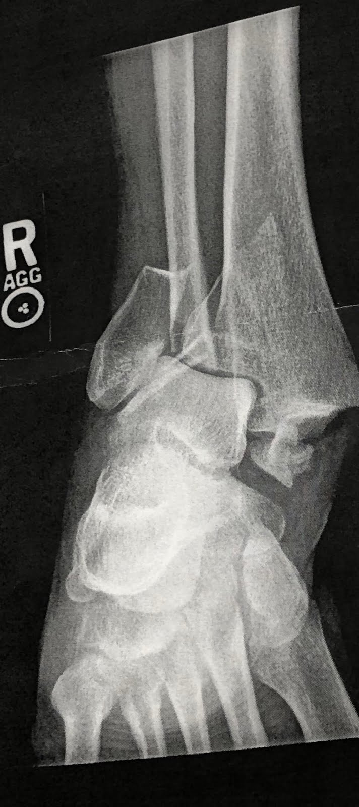 First X-ray Post Accident