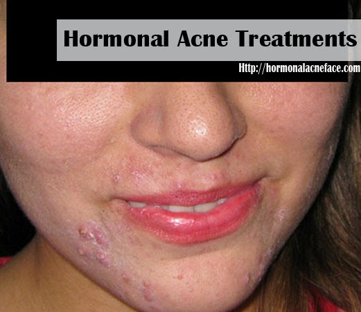 blanc d'oeuf cicatrice acné 7 mois