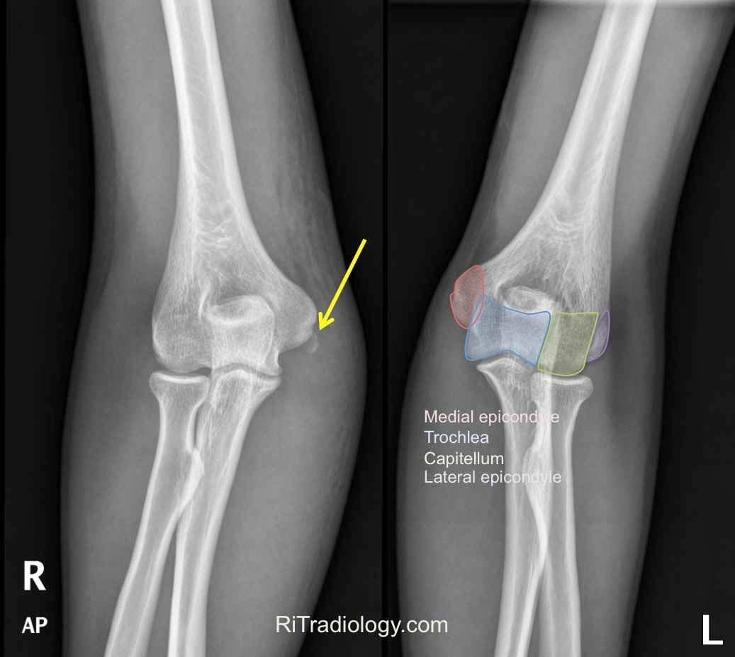 Medial Epicondyle Fracture-1.bp.blogspot.com