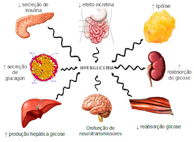 Managing Neuropathy With Diabetes