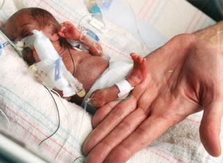 bayi terkecil di dunia