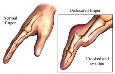 dislocated thumb pictures