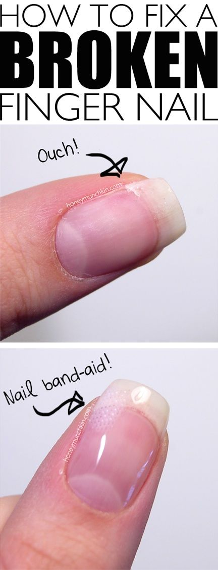 How to Fix a Broken Finger Nail