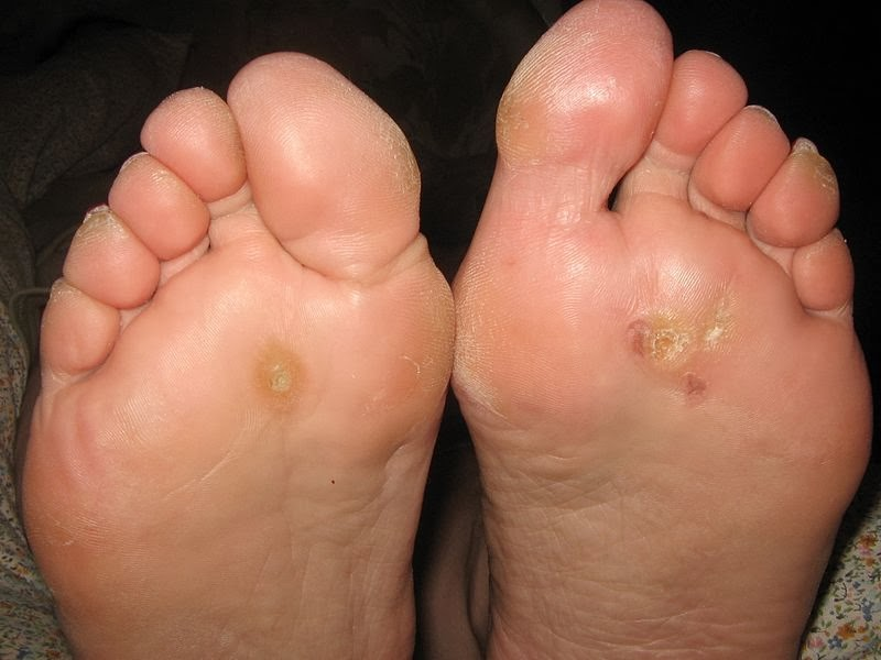 FOOT WART SYMPTOMS PICTURES AND REMOVAL TREATMENT METHODS - Clivir ...