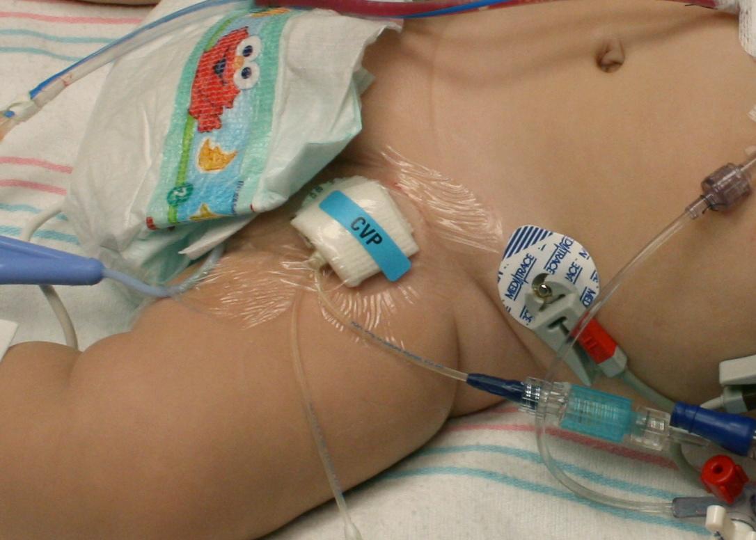 bloed in urine na catheter