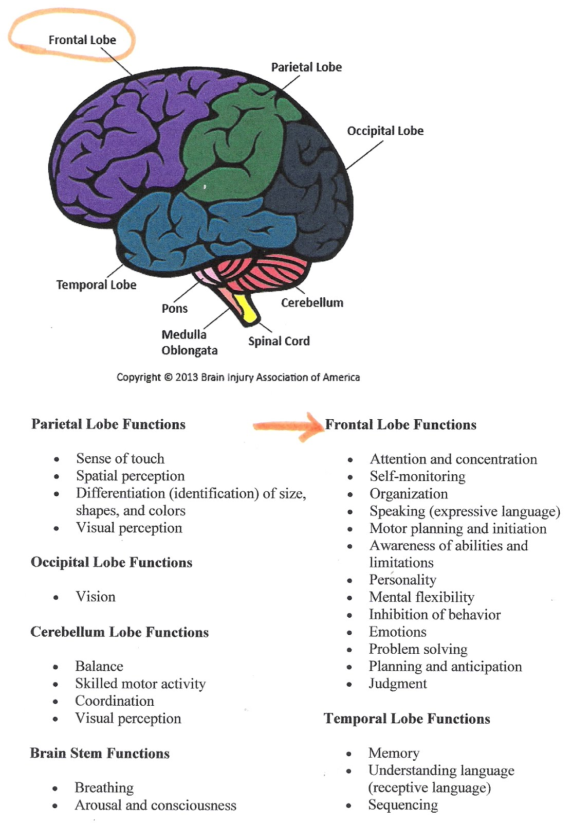 Understanding Right Frontal Infarct