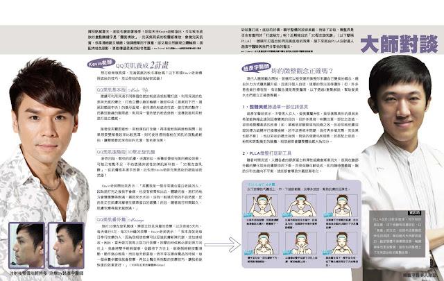 液態拉皮, 3D聚左旋乳酸, 聚左乳酸,, Kevin, PLLA, Sculptra, 趙彥宇