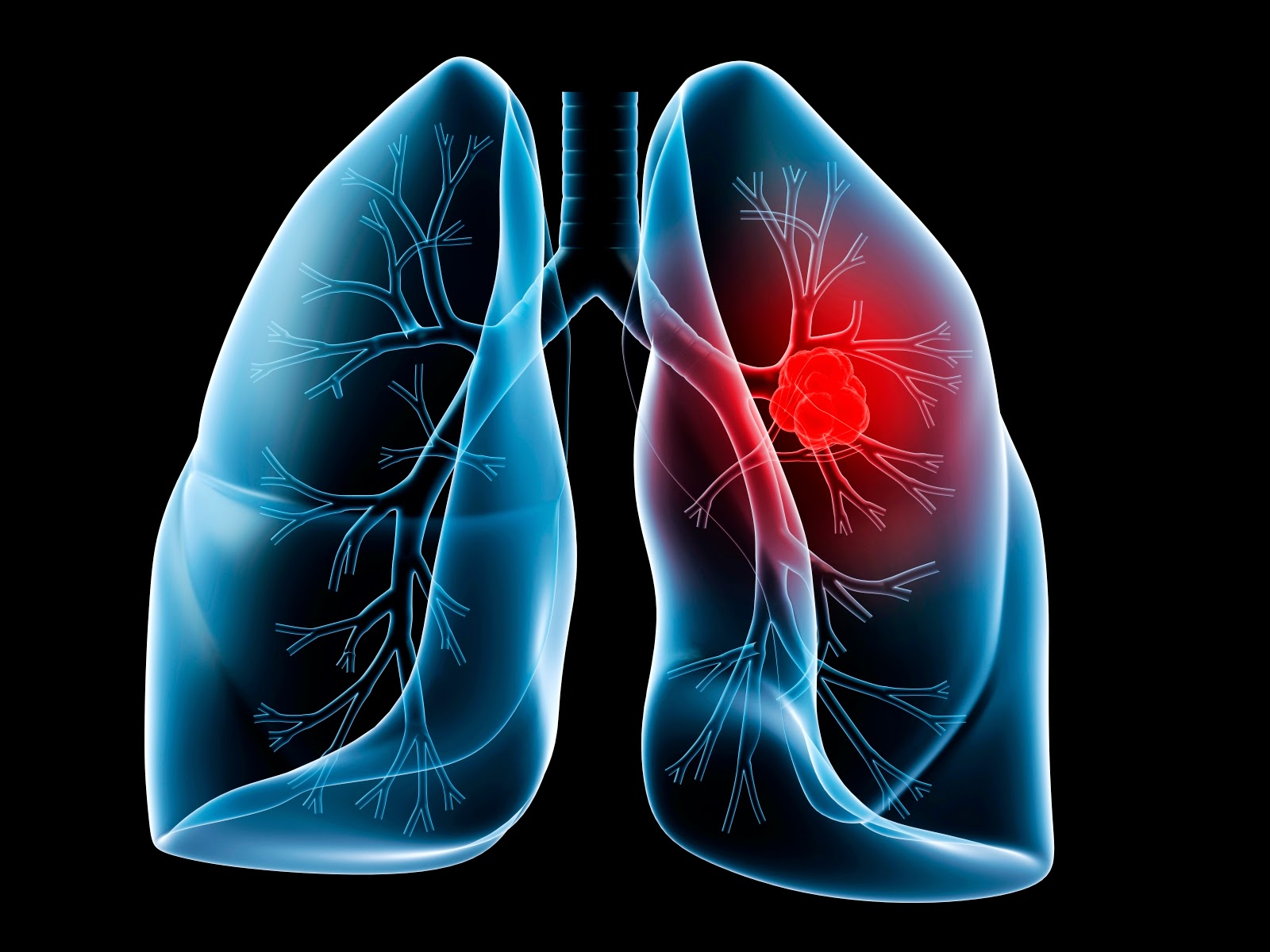 Novel Mechanism Controlling Lung Cancer Stem Cell Growth Discovered