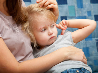 Chicken Pox Symptoms - Overview