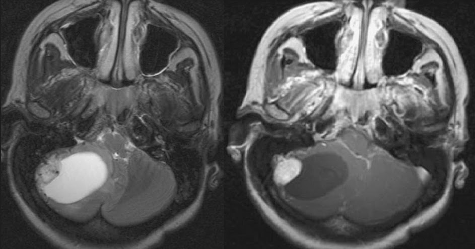 Neuroradiology cases hemangioblastoma mri for Cystic lesion with mural nodule