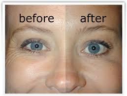 تجاعيد الوجه وصفات و طرق التخلص من التجاعيد وعلاجها