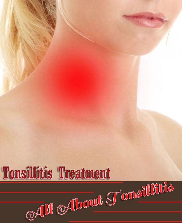 Tonsillitis Treatment - All About Tonsillitis