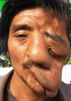 most horrible weirdest strangest diseases collapsed face syndrome 26 years old china man