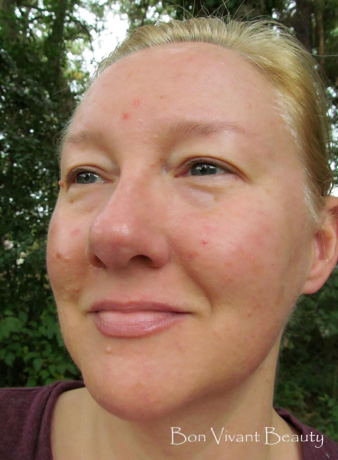 Dark Black Spots On Face