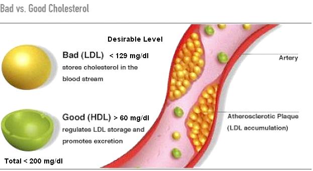 snel cholesterol verlagen